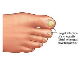 Nail Fungus Diagram