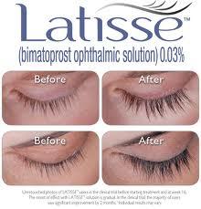 Latisse eyelash treatment